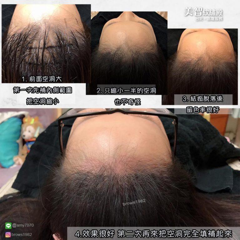 調整完的髮際線讓額頭看起來圓潤