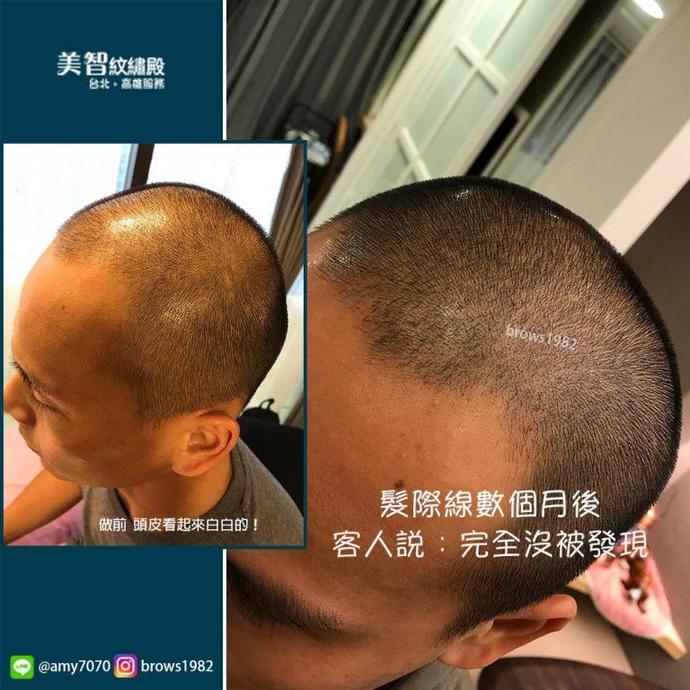 髮際線經過調整數月後看起來十分自然
