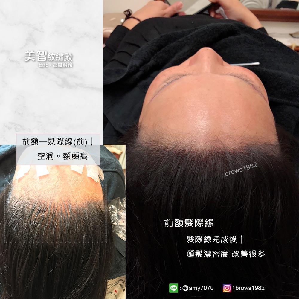 做完額前髮際線,髮量看起來也變得豐厚!