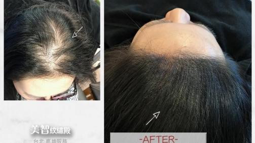 填補空洞後髮量看起來變得更豐盛!