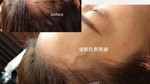 紋髮際線後,給人更青春活力的感覺。
