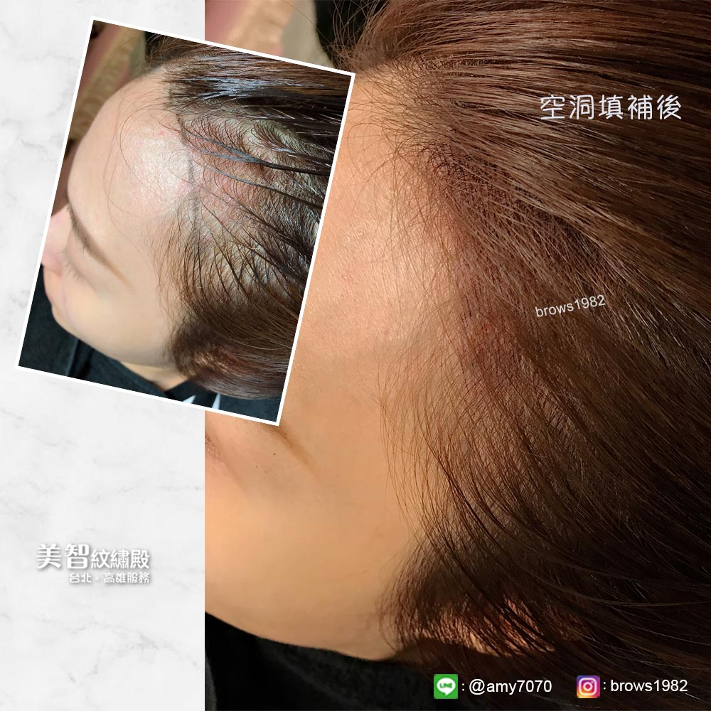 原本稀疏空洞的髮際線,經由專業紋髮際線後,不再讓額頭看起來很高!