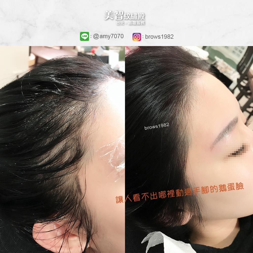 空洞的髮際線在補色後,髮量便豐厚