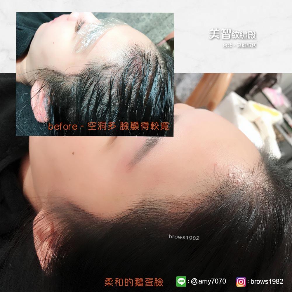 紋上自然的髮際線後,讓髮際線不再空洞缺角!