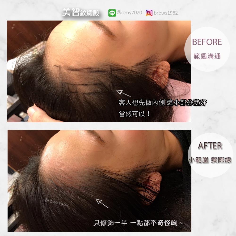 髮際線調整有做有差讓臉部線條變圓潤