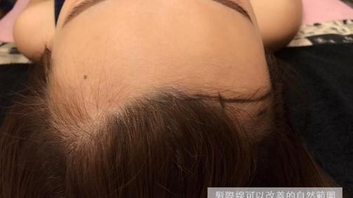 需調整髮際線的範例建議圖