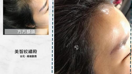 調整後臉型不只變得柔和,看起來也變小