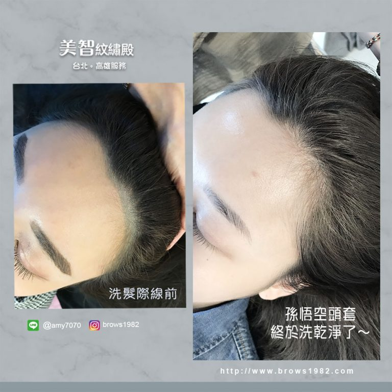 美智紋繡-髮際線設計豐盈髮線