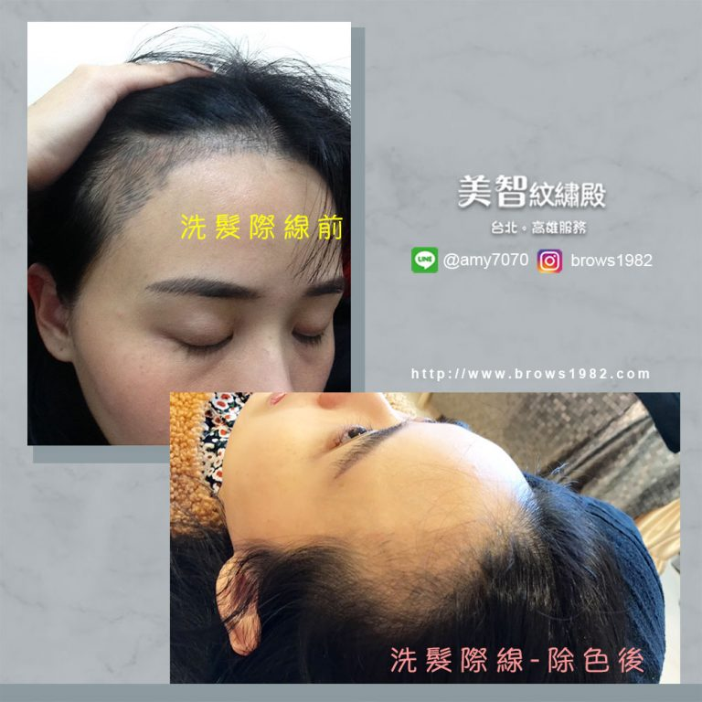 髮際線往前一公分,臉蛋小一號by美智韓系髮際線紋繡