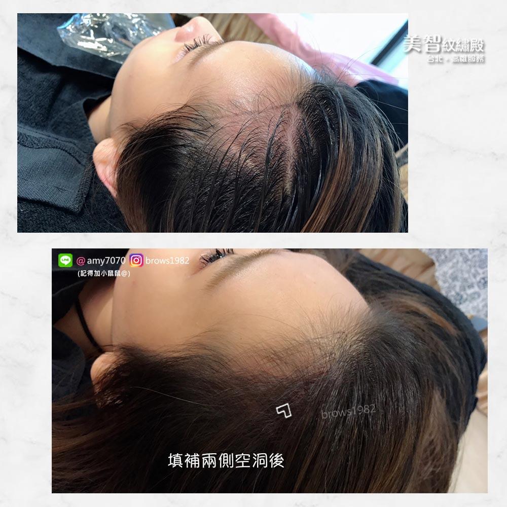 調整臉部比例,完成自然髮際線