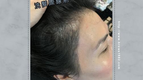 做壞的髮際線別擔心,美智專洗做壞眉/髮際線