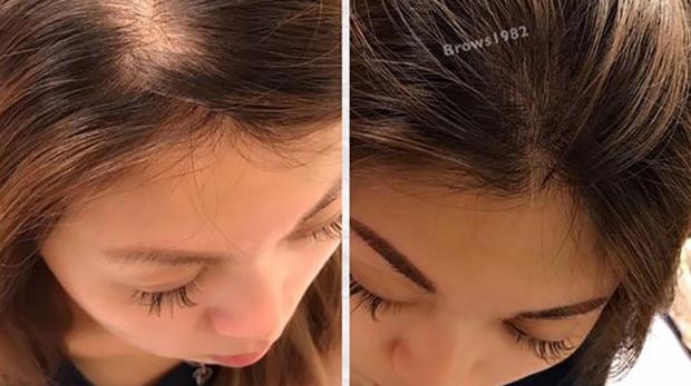 美智紋繡-髮際線設計(頭頂髮量豐盈補滿)