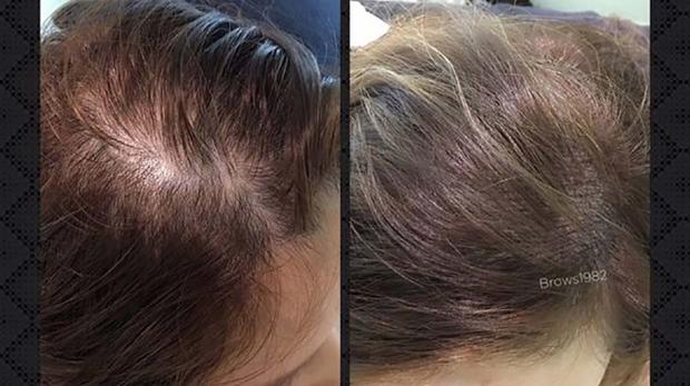 紋髮際線(豐盈髮量設計)-美智紋繡殿