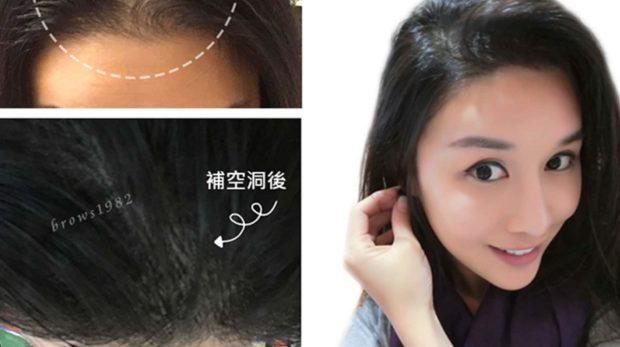 專補空洞髮際線設計