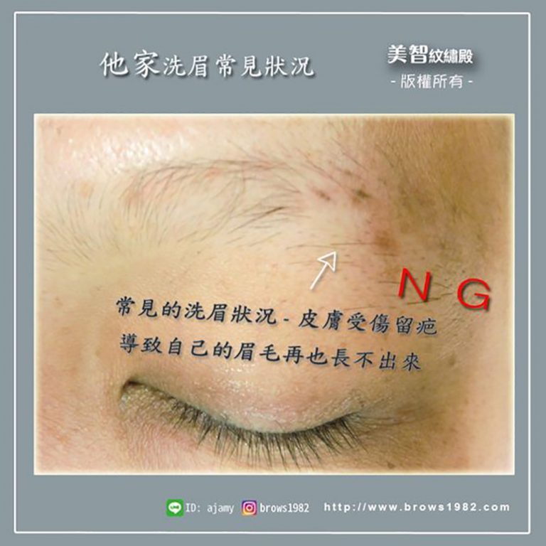 他家常見的洗眉狀況-皮膚受傷留疤-美智洗眉專家關心您