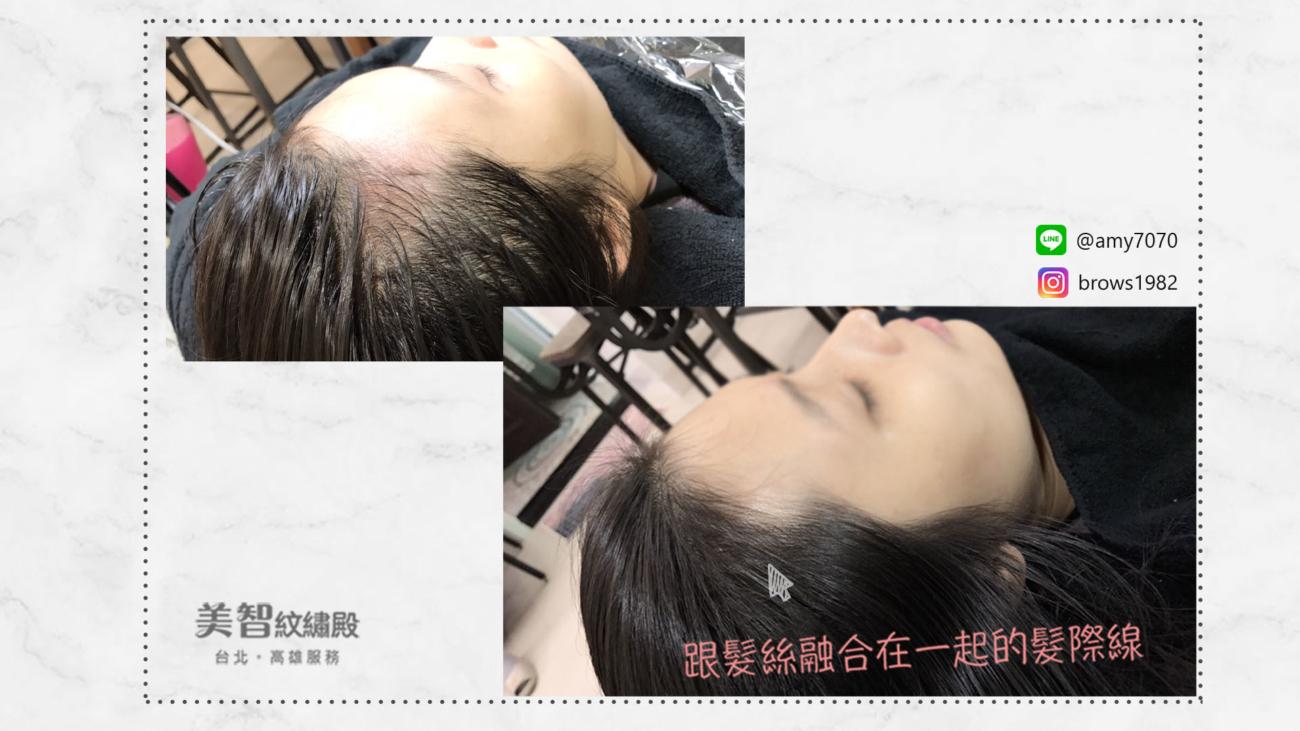 髮際線後退-美智紋繡殿