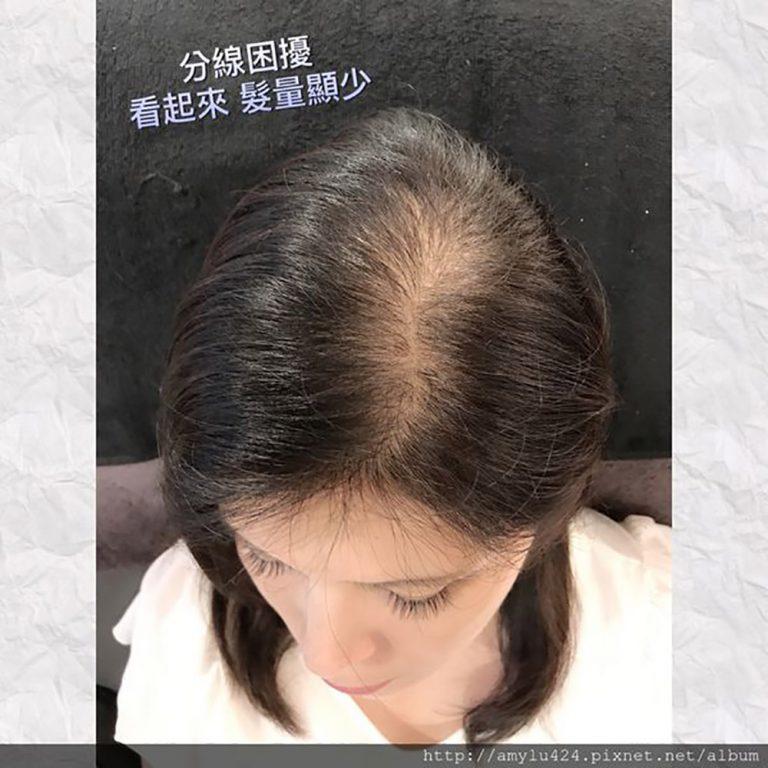 長期分邊光禿禿-美智紋繡殿髮際線設計
