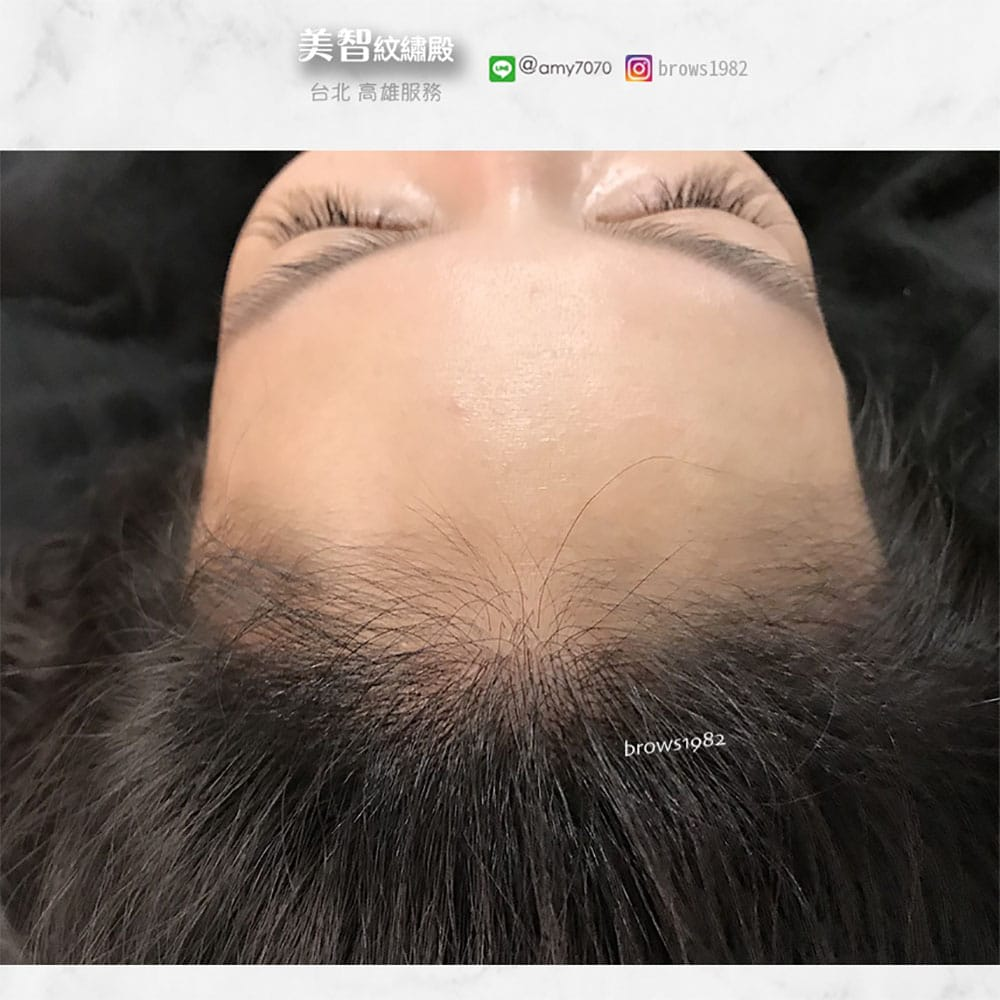 透過髮際線調整填補髮際線空洞吧!