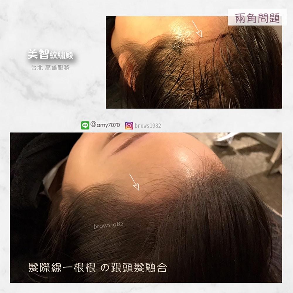 髮際線與髮絲融合,十分自然