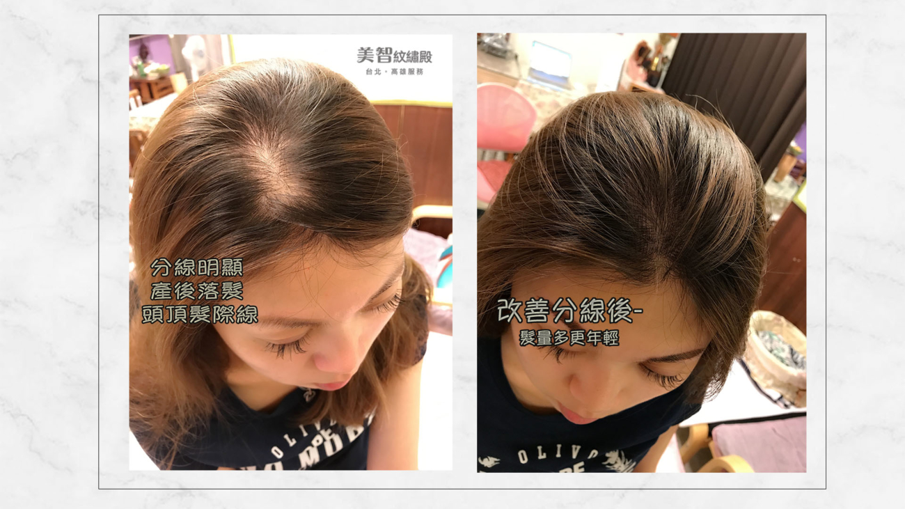 first_hairline-img