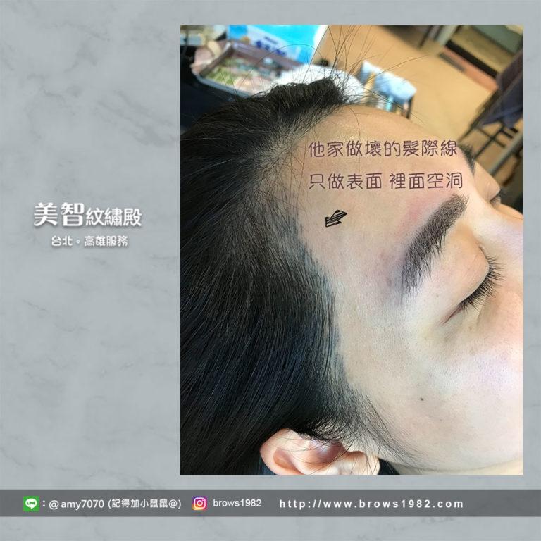 修改髮際線-台北紋繡推薦