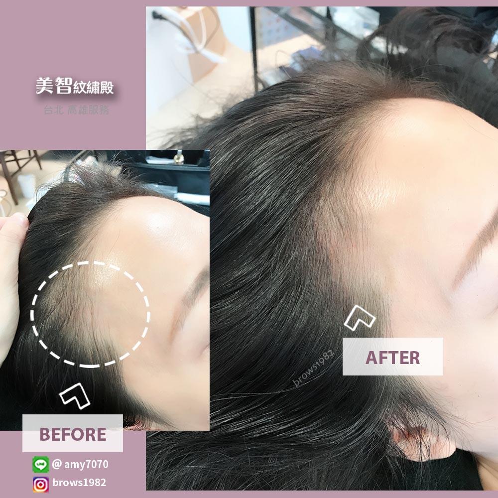 鵝蛋臉髮際線空洞-髮際線