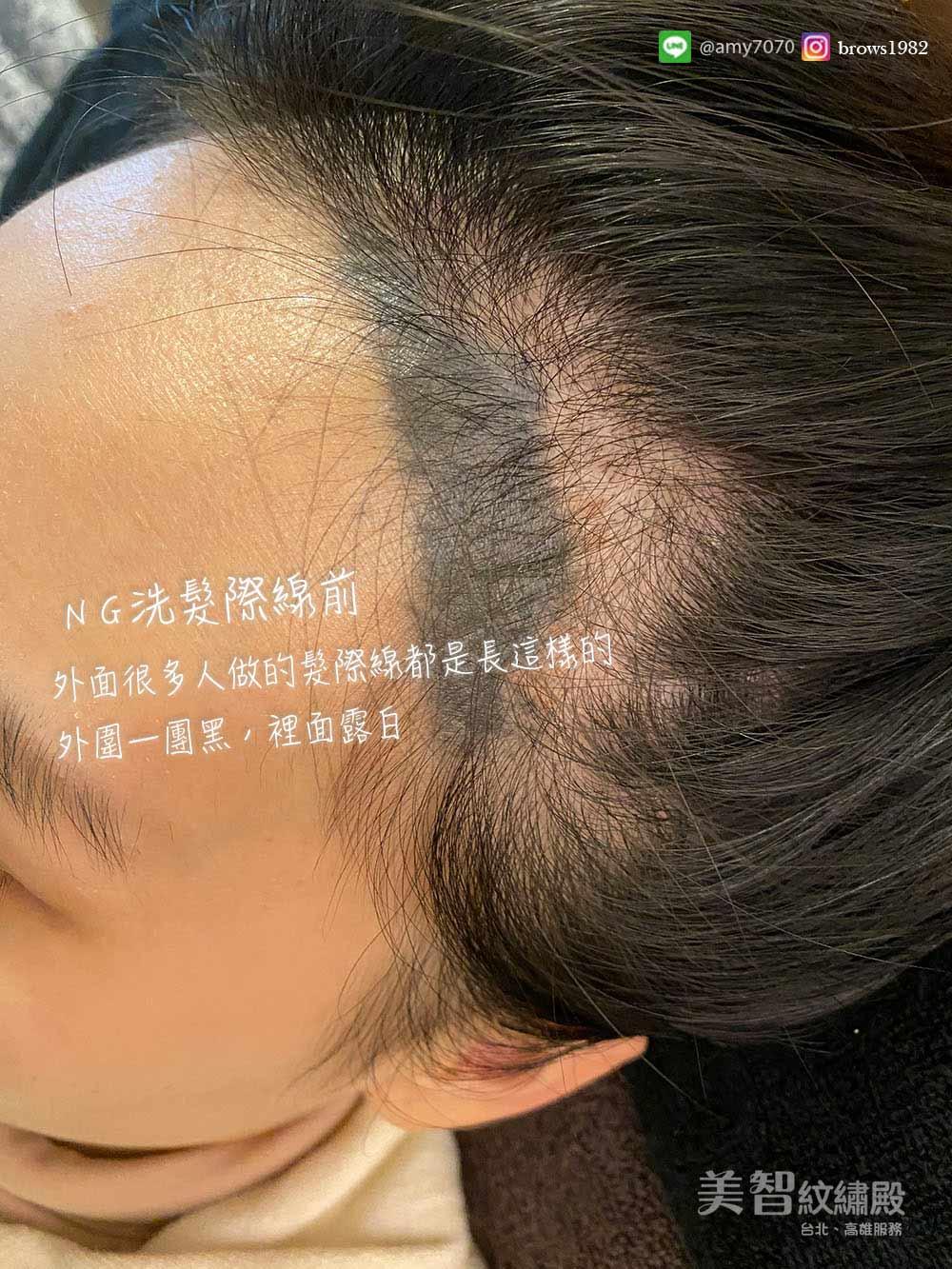 他家失敗的髮際線怎麼辦?